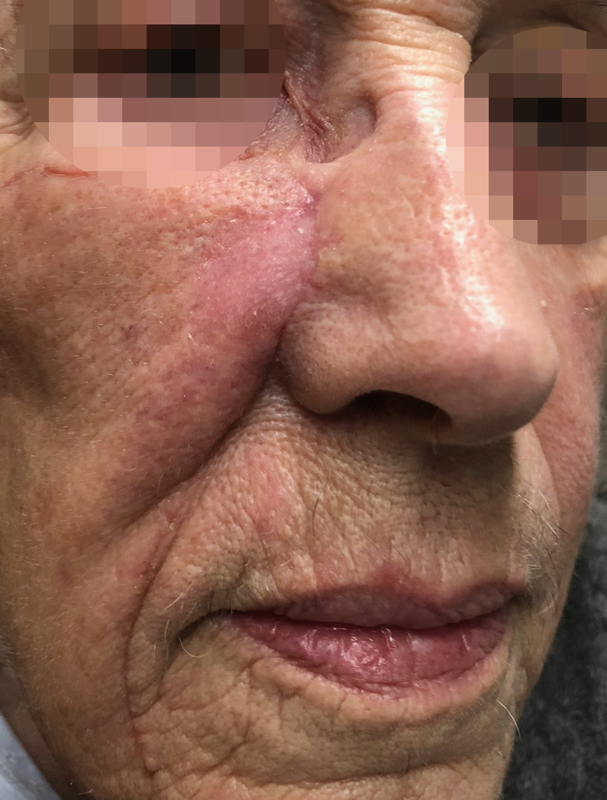 Chirurgie des tumeurs cutanées de la face- 10-Apres