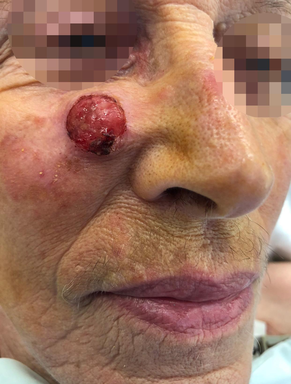 Chirurgie des tumeurs cutanées de la face- 10-Avant