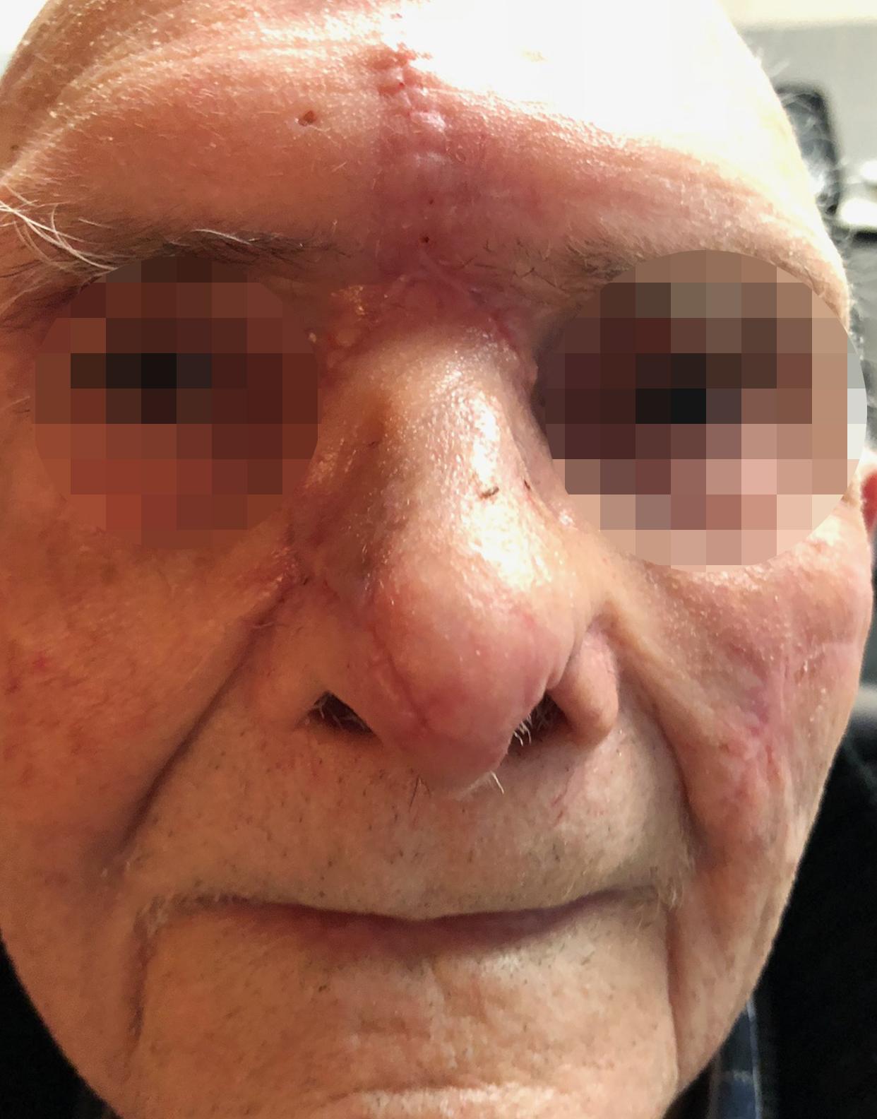 Chirurgie des tumeurs cutanées de la face- 11-Apres