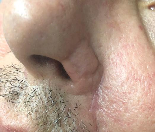 Chirurgie des tumeurs cutanées de la face-5-Apres