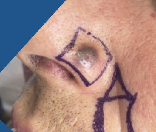 Chirurgie des tumeurs cutanées de la face-5-Avant