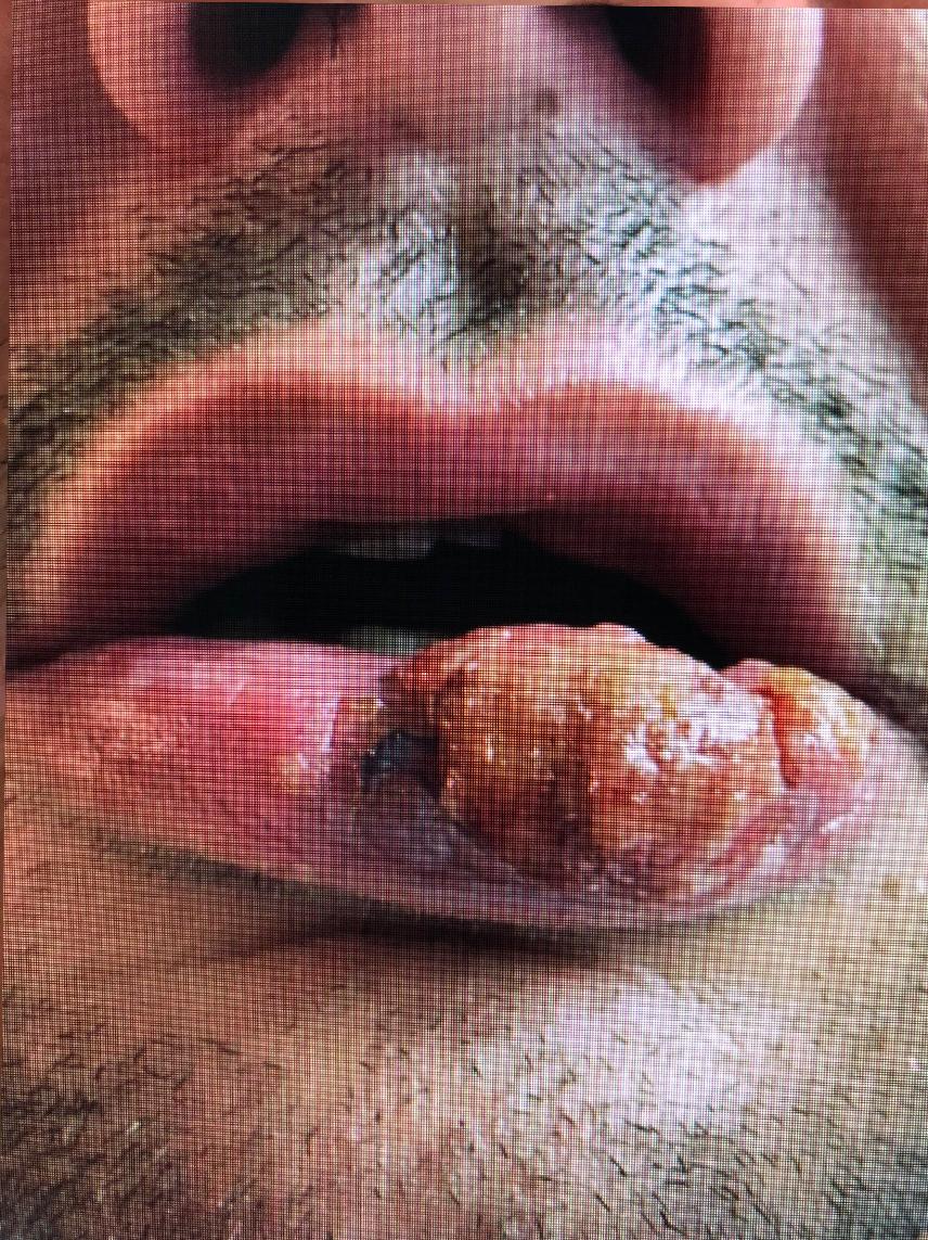 Chirurgie des tumeurs cutanées de la face- 7-Avant
