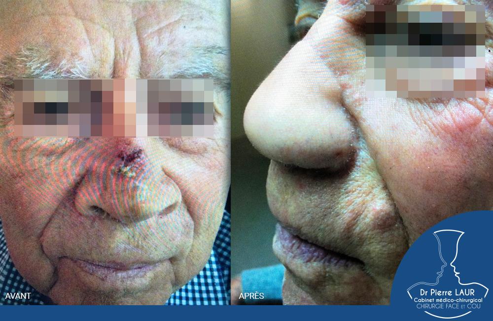 Chirurgie des tumeurs cutanées de la face-AvantApres82