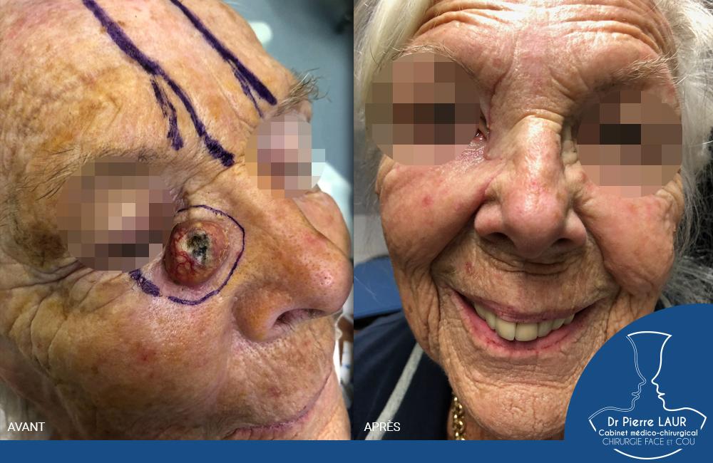 Chirurgie des tumeurs cutanées de la face-AvantApres92