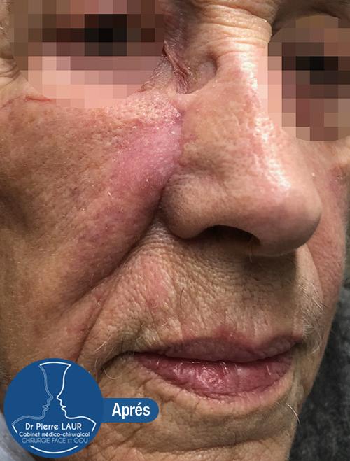 Chirurgie des tumeurs cutanées de la face-Apres 1