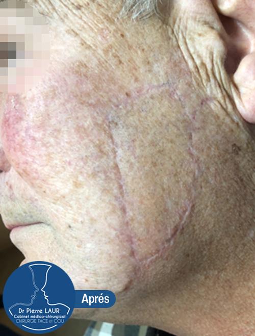 Chirurgie des tumeurs cutanées de la face-Apres 2