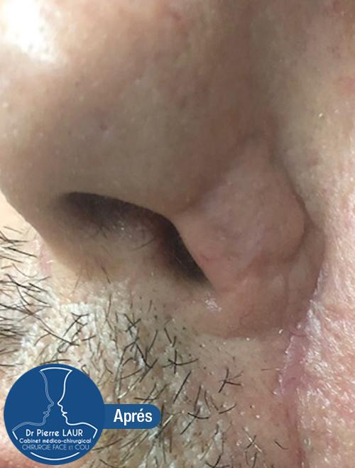 Chirurgie des tumeurs cutanées de la face-Apres 3