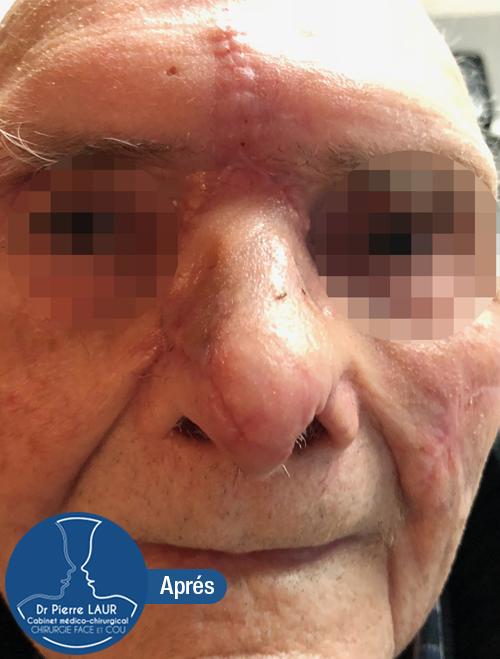 Chirurgie des tumeurs cutanées de la face-Apres 4