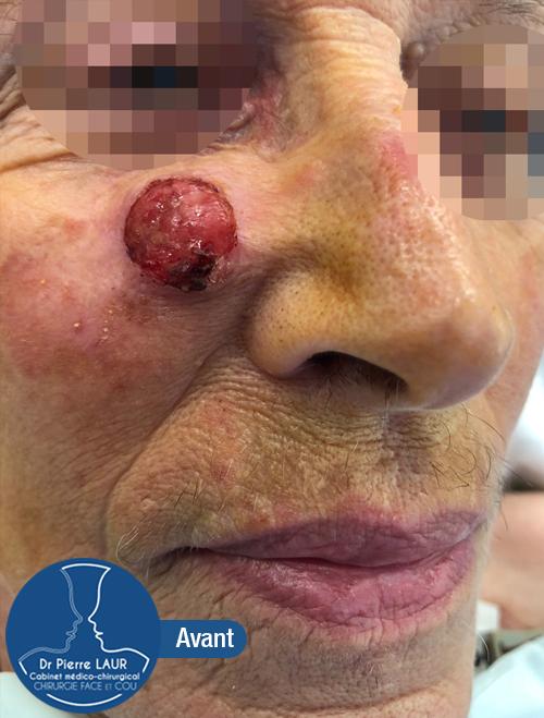 Chirurgie des tumeurs cutanées de la face-Avant 1