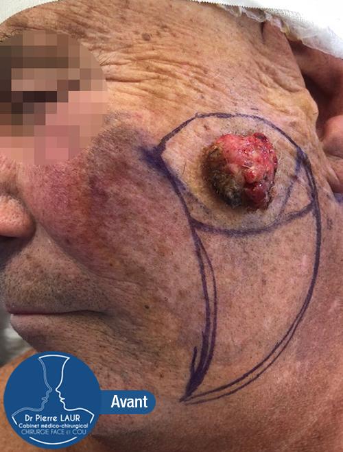 Chirurgie des tumeurs cutanées de la face-Avant 2