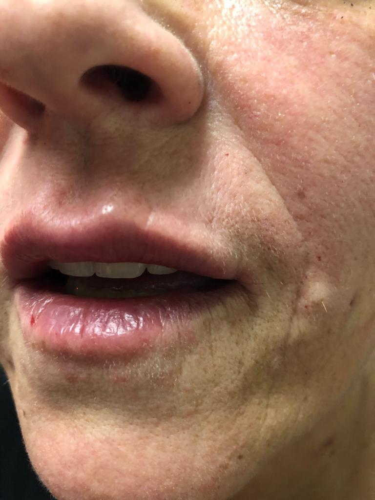 injections lèvres gonfler périgueux