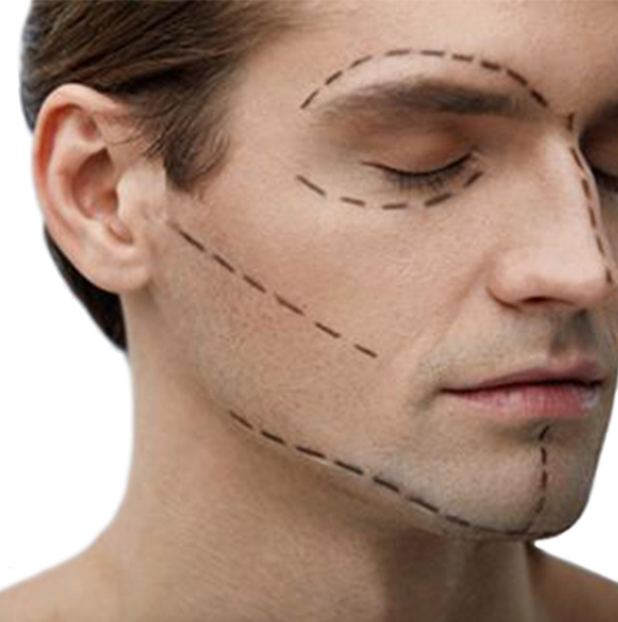 retendre peau du visage périgueux