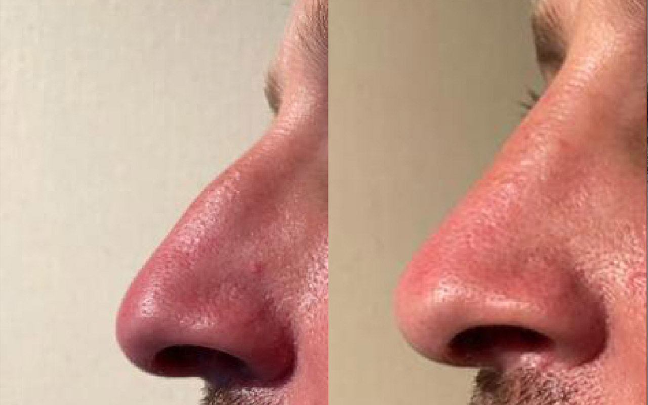 Modifier son nez sans chirurgie périgueux dordogne
