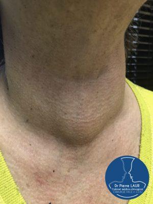 Chirurgie de la Thyroïde 1